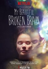 My Beautiful Broken Brain online (2016) Español latino descargar pelicula completa